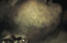 Hudskador av blekningsmedel på huden