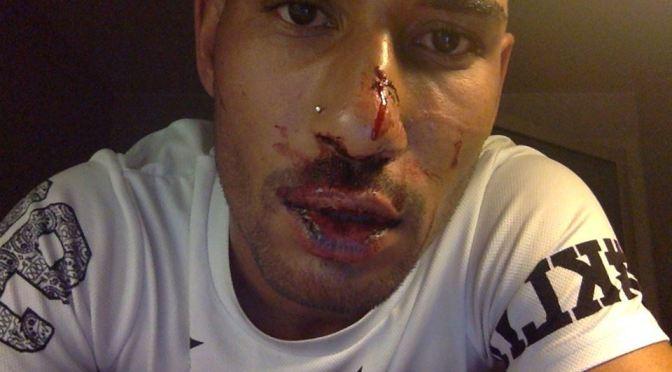 Jeremy blev misshandlad av okänt gäng