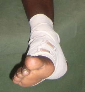 Skadad fot Foto: Fatou Touray, Afropé