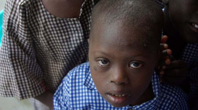 Första organisationen i Demokratiska republiken Kongo, för att stötta personer med Downs syndrom